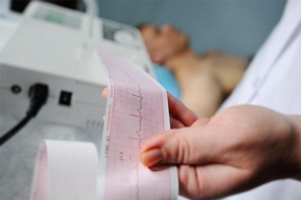 Hombre recostado mientras toman un electrocardiograma en reposo